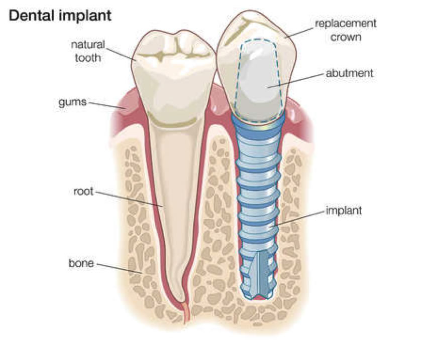 Toothfoundation Specialists In Periodontics And Dental Implants